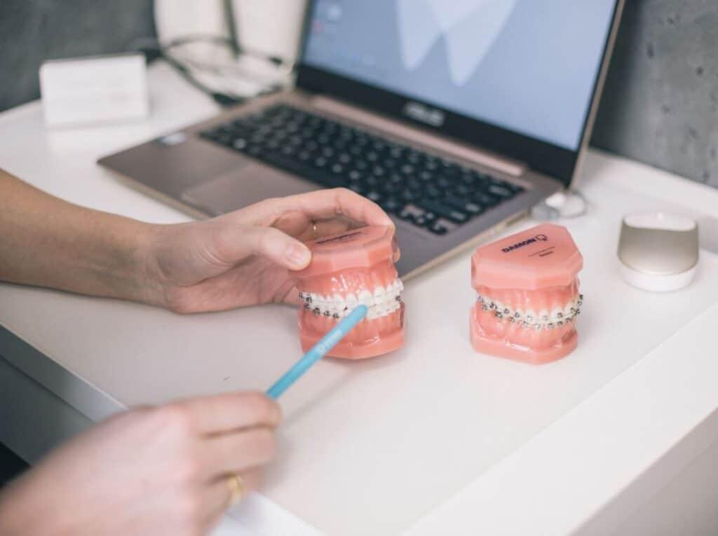ortodonta Wrocław pokazuje aparat ortodontyczny Damon