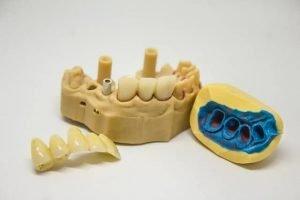 Kto to jest ortodonta?