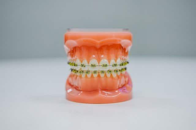 Ortodonta co leczy?