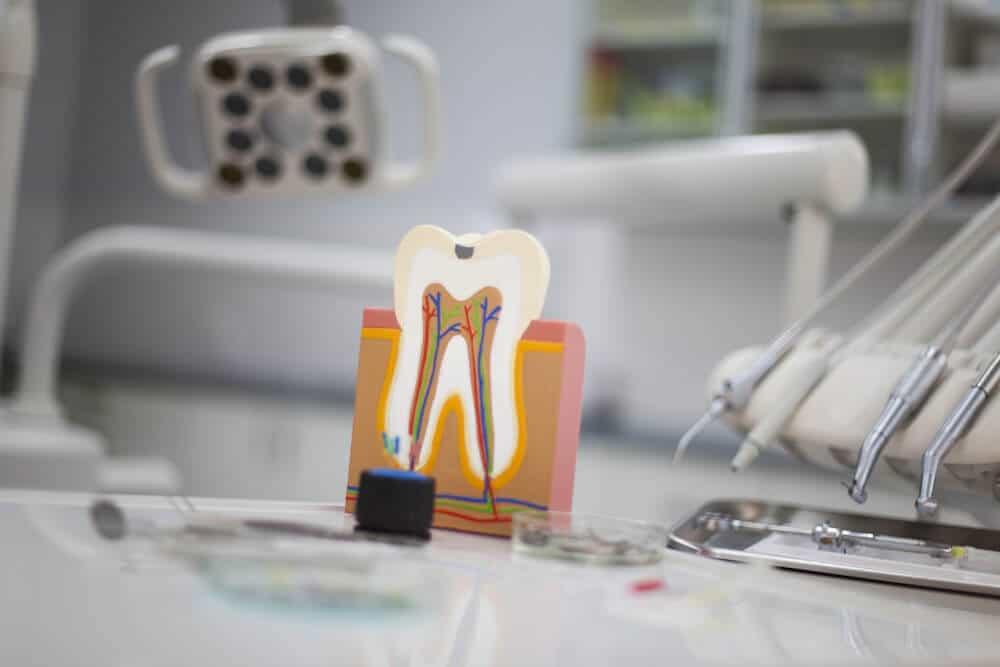 Po co dentysta zatruwa ząb?