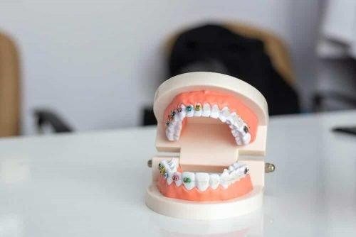 Zatrzymane ósemki a aparat ortodontyczny